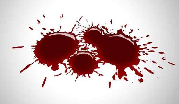 К чему снится своя кровь